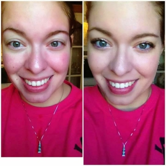 Younique's Touched mineral pressed powder foundation provides great coverage for Rosacea