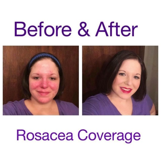 Roseacea Skin Care Beauty By Mimi