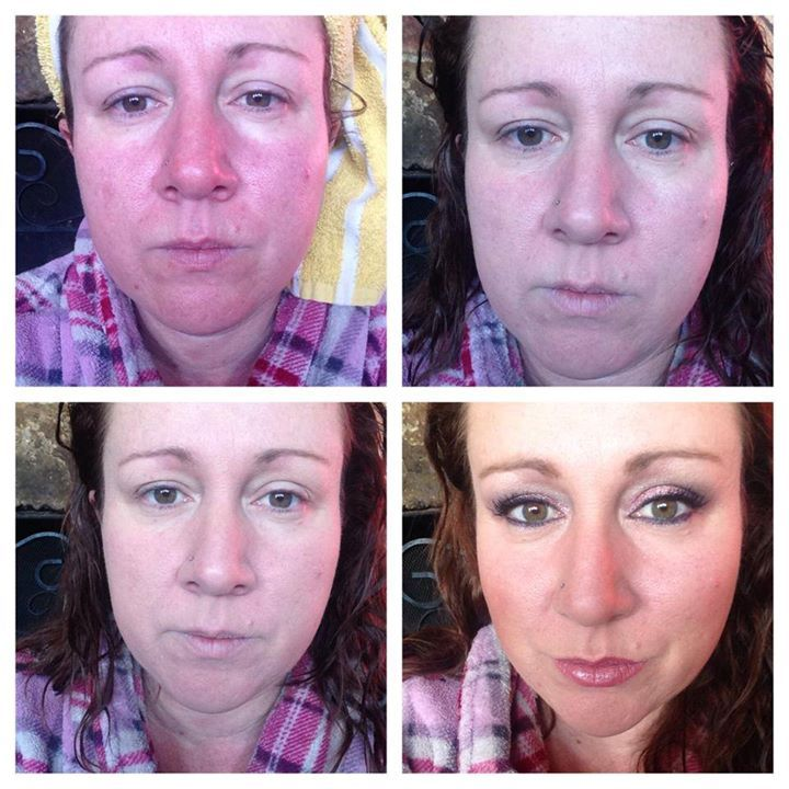 Roseacea Skin Condition Beauty By Mimi